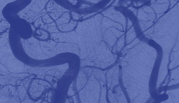 Symposium de Coopération Internationale sur les Accidents Vasculaires Cérébraux 2018