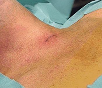 Hyperparathyroïdisme traitement