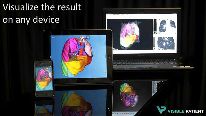 VISIBLE PATIENT : visualize the result on any device